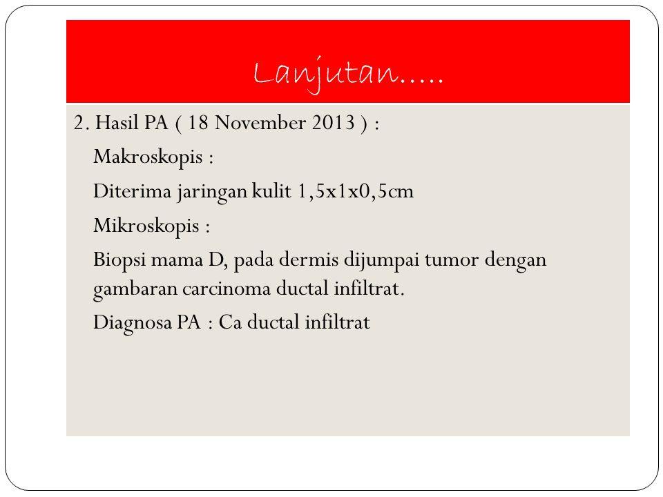 Lanjutan….. 2. Hasil PA ( 18 November 2013 ) : Makroskopis : Diterima jaringan kulit 1,5x1x0,5cm Mikroskopis : Biopsi mama D, pada dermis dijumpai tum