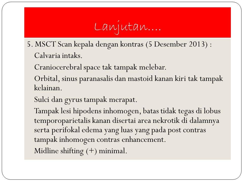 Lanjutan…. 5. MSCT Scan kepala dengan kontras (5 Desember 2013) : Calvaria intaks. Craniocerebral space tak tampak melebar. Orbital, sinus paranasalis