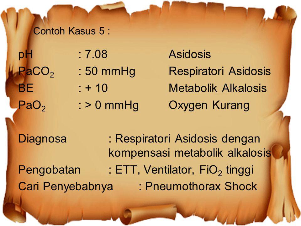Contoh Kasus 5 : pH: 7.08Asidosis PaCO 2 : 50 mmHgRespiratori Asidosis BE: + 10Metabolik Alkalosis PaO 2 : > 0 mmHgOxygen Kurang Diagnosa: Respiratori