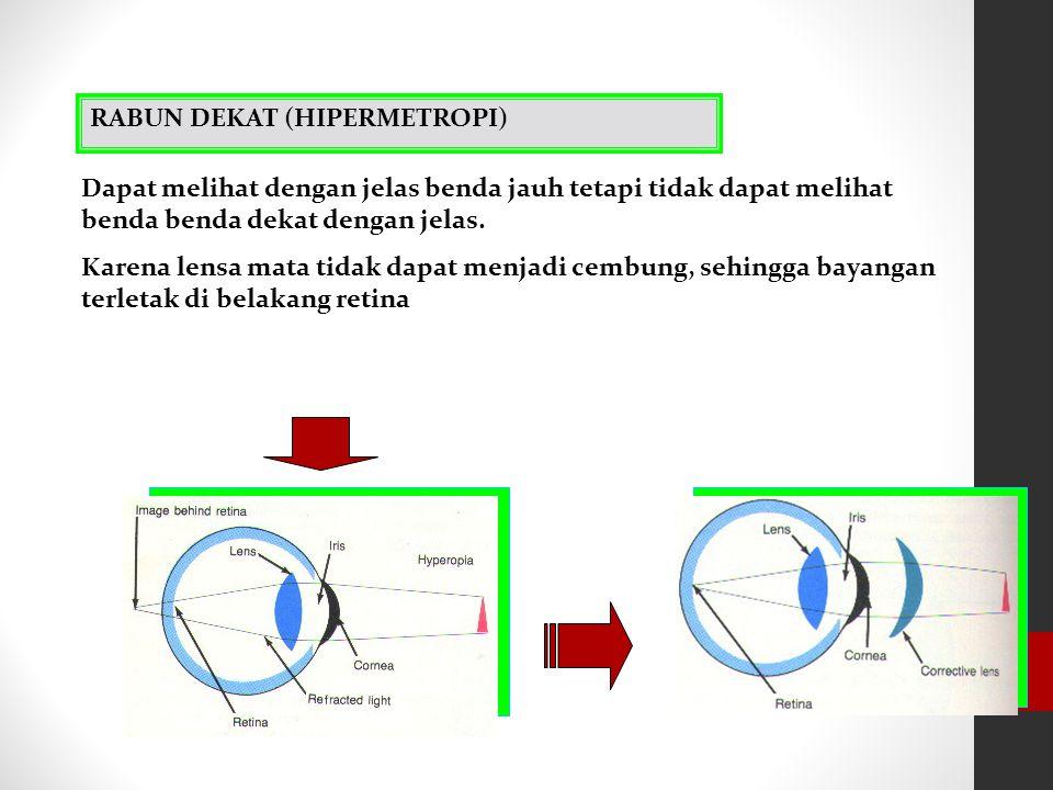(a) (b) Penderita miopi (a) lensa mata terlalu kuat (panjang fokus lensa mata kecil) dan (b) bentuk mata terlalu memanjang. Kacamata dengan kekuatan l