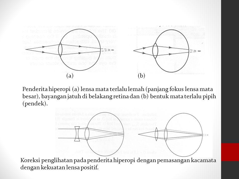 RABUN DEKAT (HIPERMETROPI) Dapat melihat dengan jelas benda jauh tetapi tidak dapat melihat benda benda dekat dengan jelas. Karena lensa mata tidak da