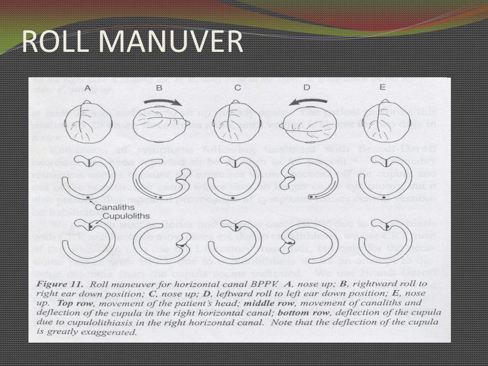TATALAKSANA 1 Canalith Repositioning Treatment (CRT) dan Liberatory maneuver  KSS posterior and anterior 2.Rolling (Barbecue) maneuver  KSS horizontal 3.