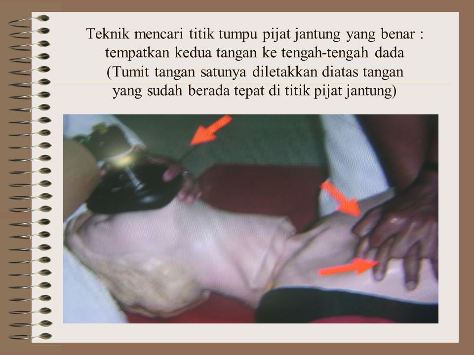 Teknik mencari titik tumpu pijat jantung yang benar : tempatkan kedua tangan ke tengah-tengah dada (Tumit tangan satunya diletakkan diatas tangan yang sudah berada tepat di titik pijat jantung)