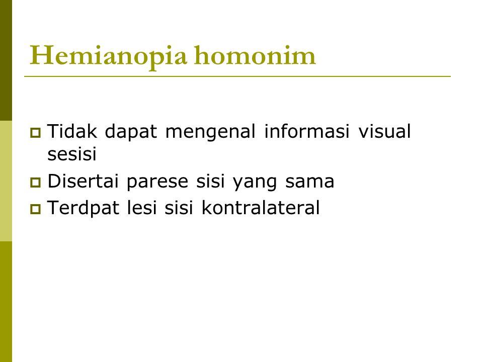 Hemianopia homonim  Tidak dapat mengenal informasi visual sesisi  Disertai parese sisi yang sama  Terdpat lesi sisi kontralateral