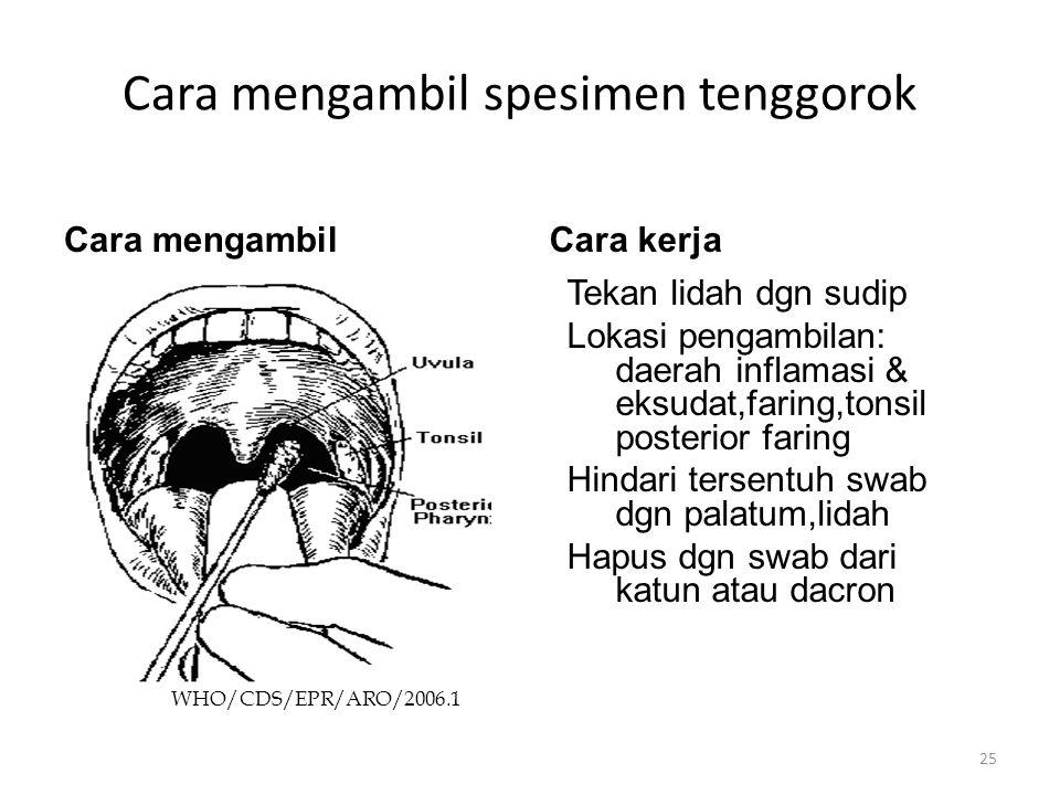 Cara mengambil spesimen tenggorok Cara mengambilCara kerja WHO/CDS/EPR/ARO/2006.1 Tekan lidah dgn sudip Lokasi pengambilan: daerah inflamasi & eksudat,faring,tonsil posterior faring Hindari tersentuh swab dgn palatum,lidah Hapus dgn swab dari katun atau dacron 25