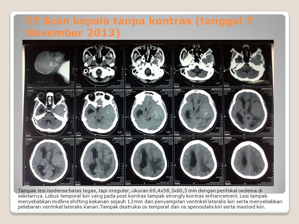 CT Scan kepala tanpa kontras (tanggal 7 November 2013) Tampak lesi isodense batas tegas, tapi irreguler, ukuran 69,4x58,3x60,3 mm dengan perifokal oedema di sekitarnya.