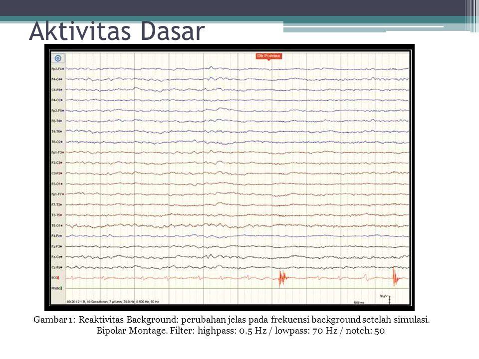 Gambar 1: Reaktivitas Background: perubahan jelas pada frekuensi background setelah simulasi. Bipolar Montage. Filter: highpass: 0.5 Hz / lowpass: 70