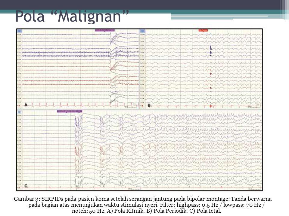 "Pola ""Malignan"" Gambar 3: SIRPIDs pada pasien koma setelah serangan jantung pada bipolar montage: Tanda berwarna pada bagian atas menunjukan waktu sti"