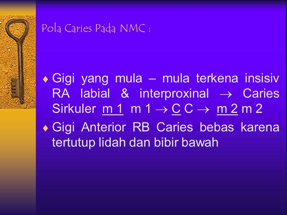 NMC :  Caries juga terjadi pada anak di bawah usia 6 tahun yang mempunyai kebiasaan meminum ASI/Cairan bergula dari sebelum tidur sampai tertidur dan