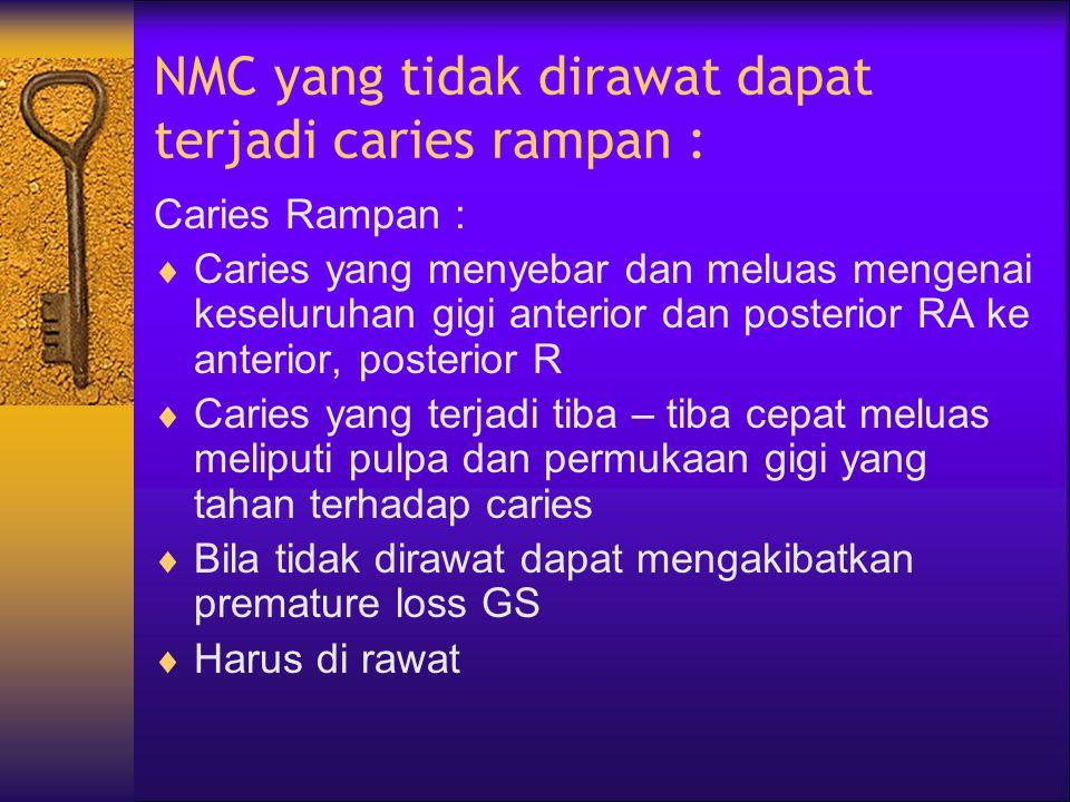 Pencegahan NMC 1. Membiasakan Anak meminum susu dari gelas 2. Membersihkan gigi dengan kapas yang dibasahi air hangat pada bagian gigi & mulut yang te