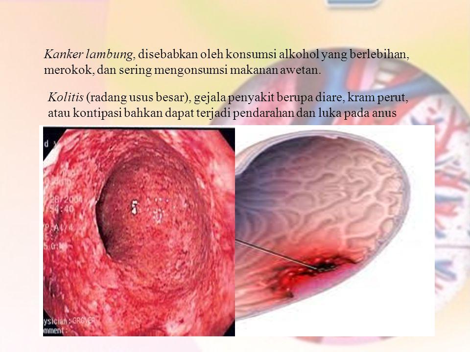 Kolitis (radang usus besar), gejala penyakit berupa diare, kram perut, atau kontipasi bahkan dapat terjadi pendarahan dan luka pada anus Kanker lambun