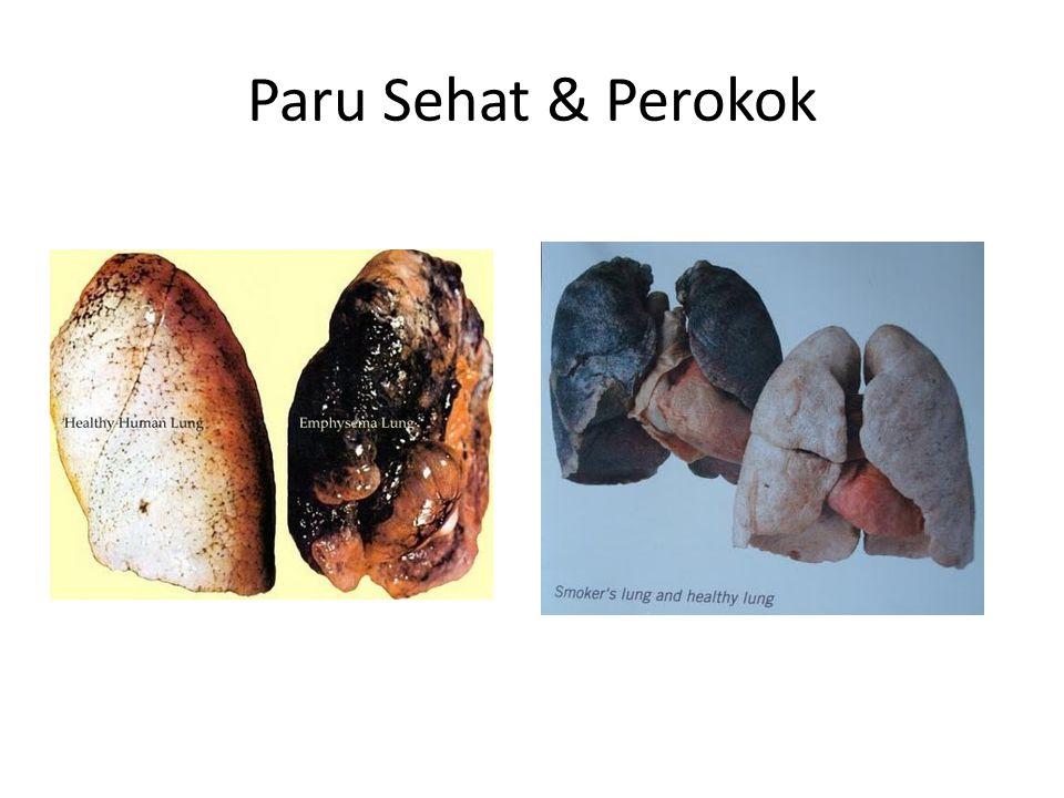 Paru Sehat & Perokok
