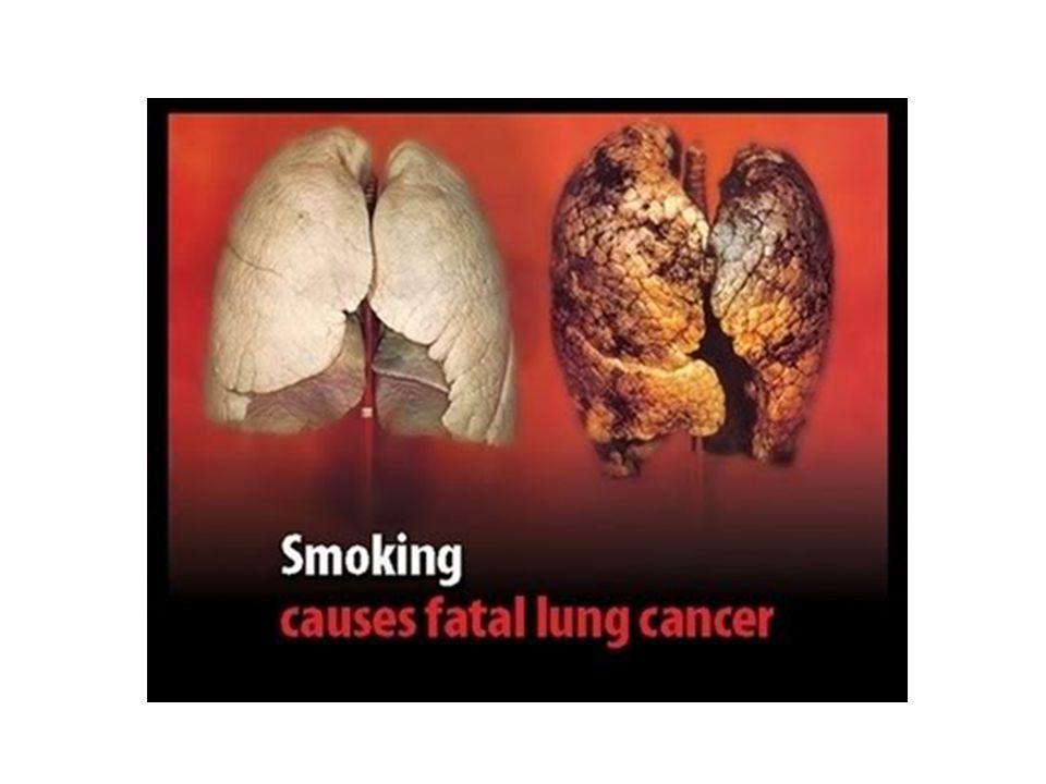 Perokok & Penyakit Jantung Rokok Bisa Membunuh Jantung Perokok Aktif Dan Perokok Pasif Dengan Berbagai Racun Berbahaya Perokok mendapat risiko 2 kali lipat mengidap penyakit jantung bahkan mendadak 2-4 kali lipat daripada yang tidak merokok.