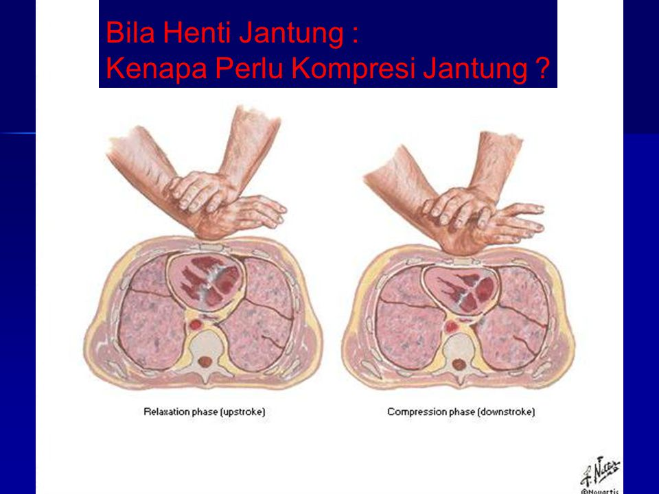 Bila Henti Jantung : Kenapa Perlu Kompresi Jantung ?