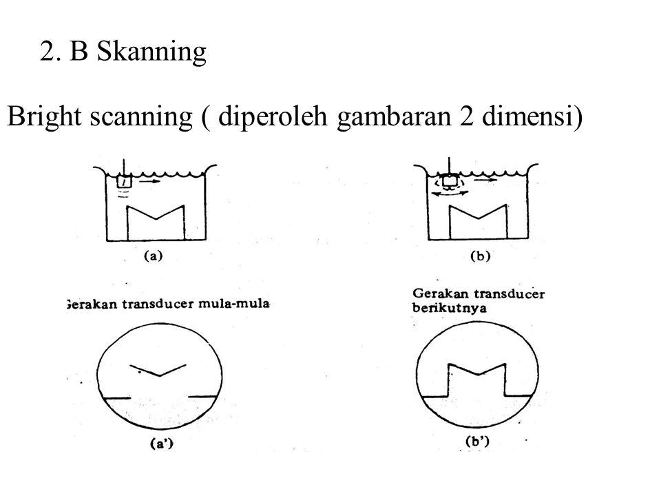 Ultrasonik sebagai pelengkap diagnosis 1.A Skanning ( Amplitudo )
