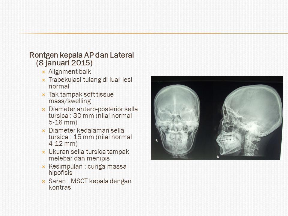Rontgen kepala AP dan Lateral (8 januari 2015)  Alignment baik  Trabekulasi tulang di luar lesi normal  Tak tampak soft tissue mass/swelling  Diam