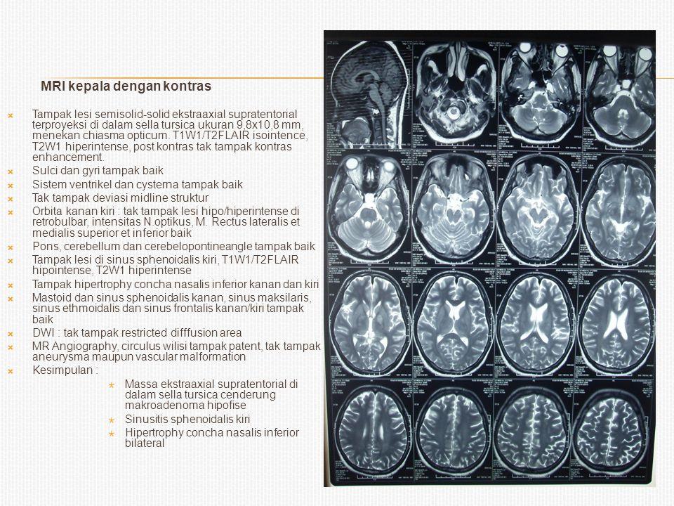 MRI kepala dengan kontras  Tampak lesi semisolid-solid ekstraaxial supratentorial terproyeksi di dalam sella tursica ukuran 9,8x10,8 mm, menekan chia
