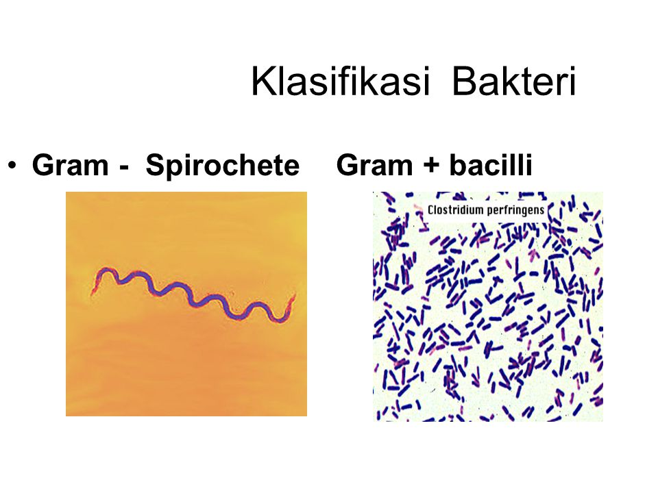 Klasifikasi Bakteri Gram - SpirocheteGram + bacilli