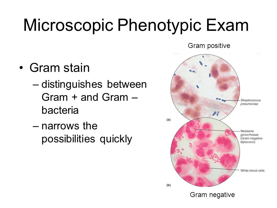 Microscopic Phenotypic Exam Gram stain –distinguishes between Gram + and Gram – bacteria –narrows the possibilities quickly Gram positive Gram negative