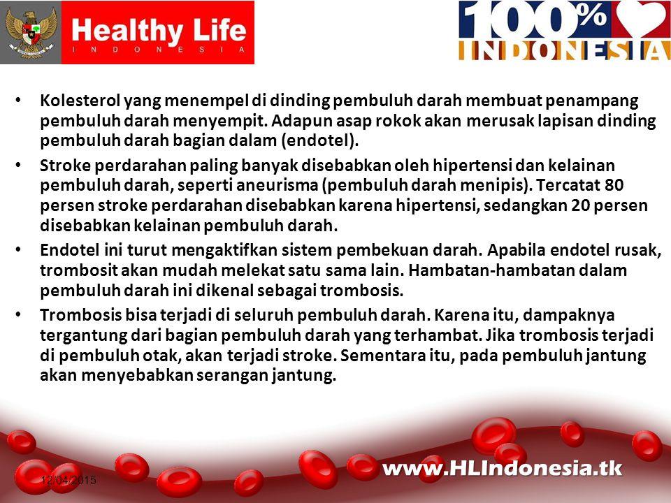 12/04/2015 Kolesterol yang menempel di dinding pembuluh darah membuat penampang pembuluh darah menyempit. Adapun asap rokok akan merusak lapisan dindi