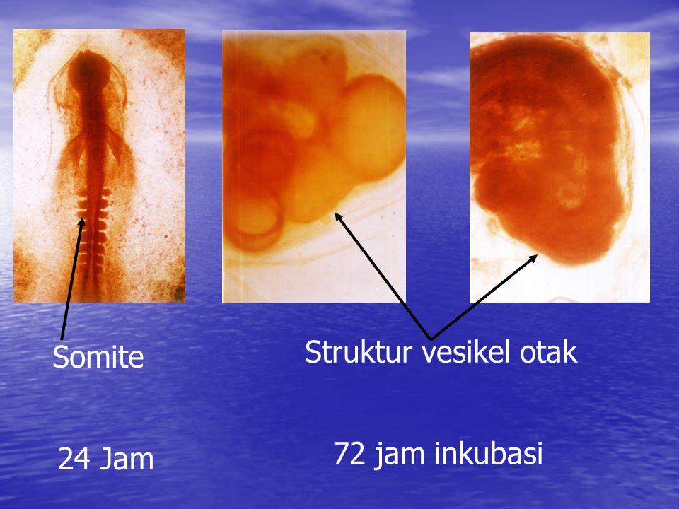 24 Jam 72 jam inkubasi Struktur vesikel otak Somite