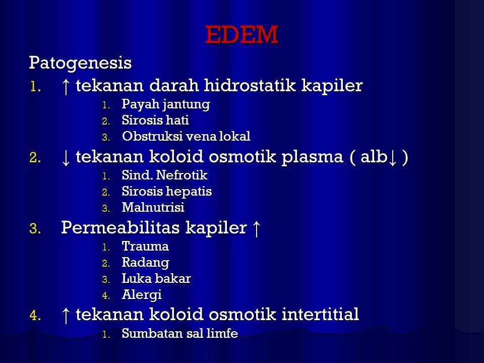 EDEM Patogenesis 1. ↑ tekanan darah hidrostatik kapiler 1. Payah jantung 2. Sirosis hati 3. Obstruksi vena lokal 2. ↓ tekanan koloid osmotik plasma (