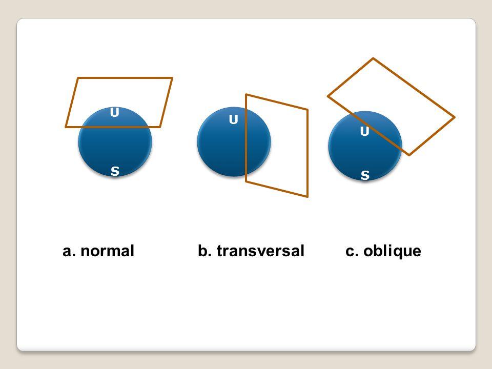 USUS USUS USUS USUS U U a. normalb. transversalc. oblique