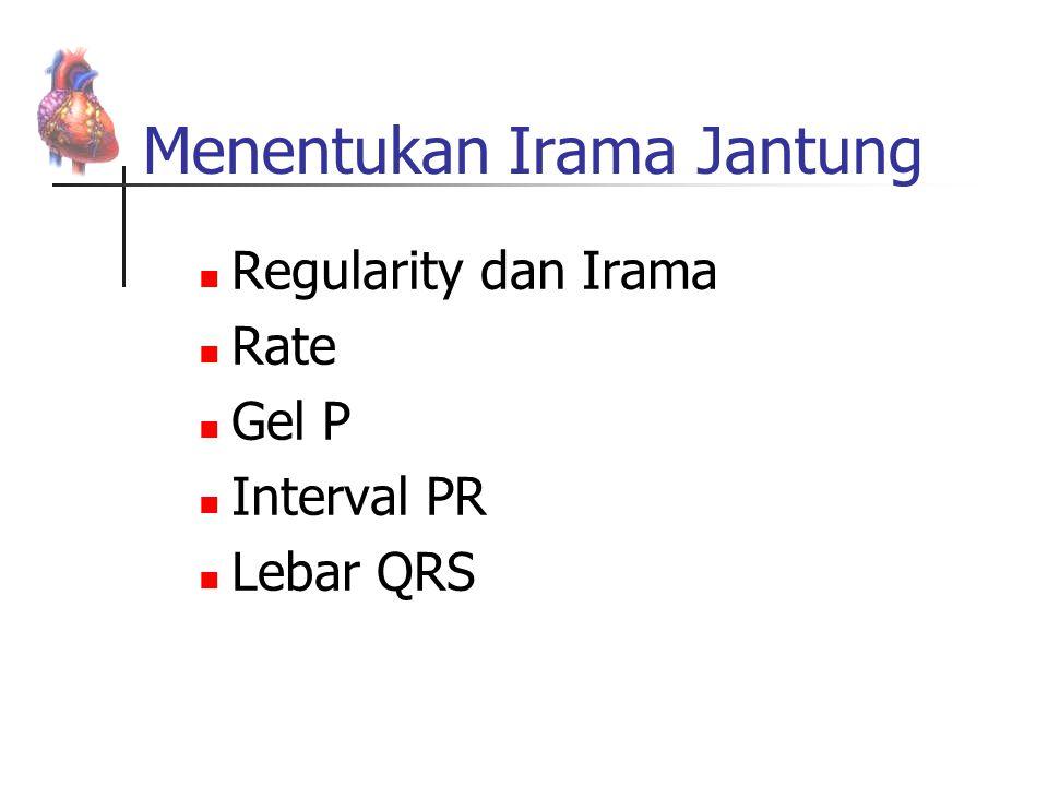 Menentukan Irama Jantung Regularity dan Irama Rate Gel P Interval PR Lebar QRS