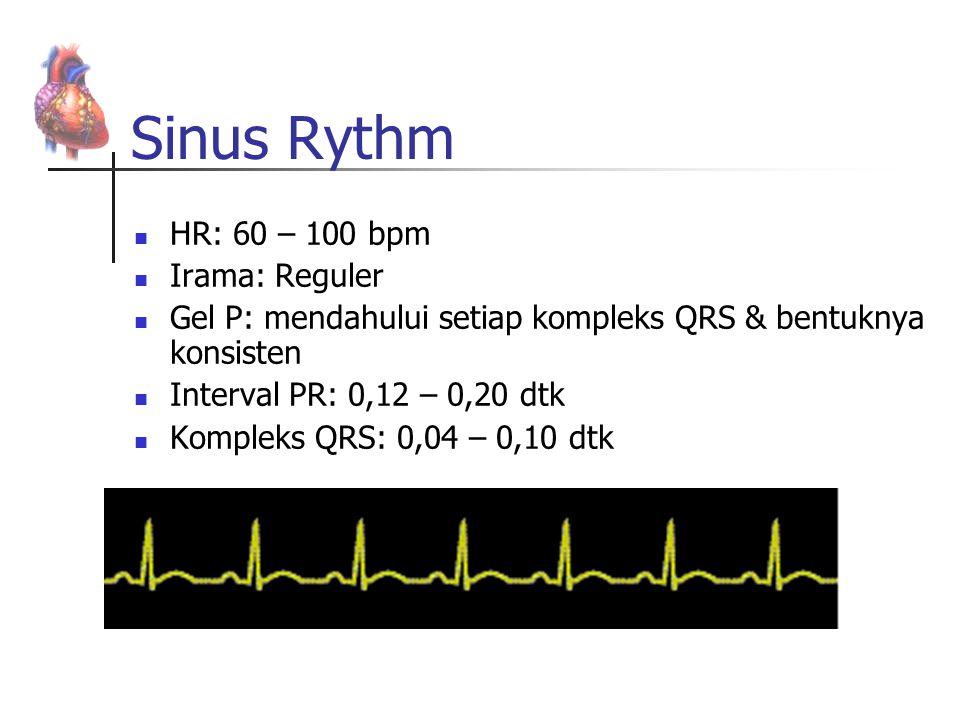 Sinus Rythm HR: 60 – 100 bpm Irama: Reguler Gel P: mendahului setiap kompleks QRS & bentuknya konsisten Interval PR: 0,12 – 0,20 dtk Kompleks QRS: 0,0