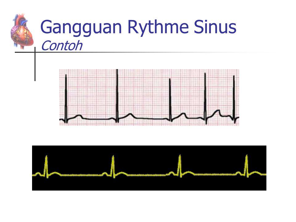 Gangguan Rythme Sinus Contoh