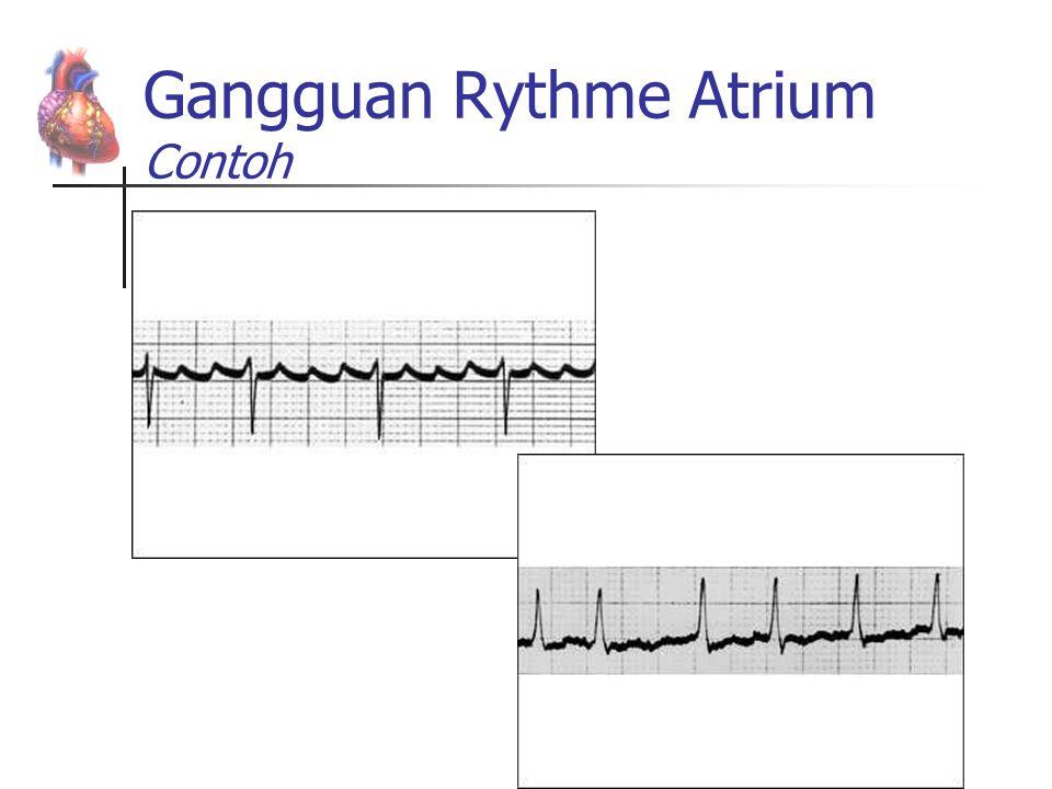 Gangguan Rythme Atrium Contoh