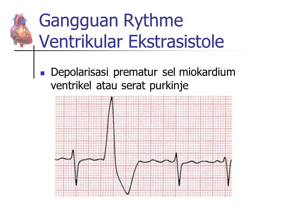 Gangguan Rythme Ventrikular Ekstrasistole Depolarisasi prematur sel miokardium ventrikel atau serat purkinje