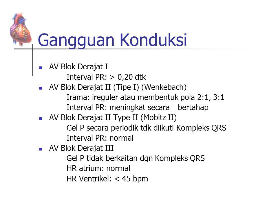 Gangguan Konduksi AV Blok Derajat I Interval PR: > 0,20 dtk AV Blok Derajat II (Tipe I) (Wenkebach) Irama: ireguler atau membentuk pola 2:1, 3:1 Inter