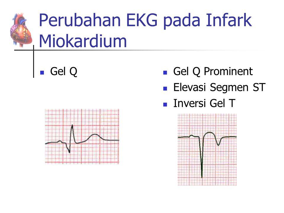 Perubahan EKG pada Infark Miokardium Gel Q Gel Q Prominent Elevasi Segmen ST Inversi Gel T