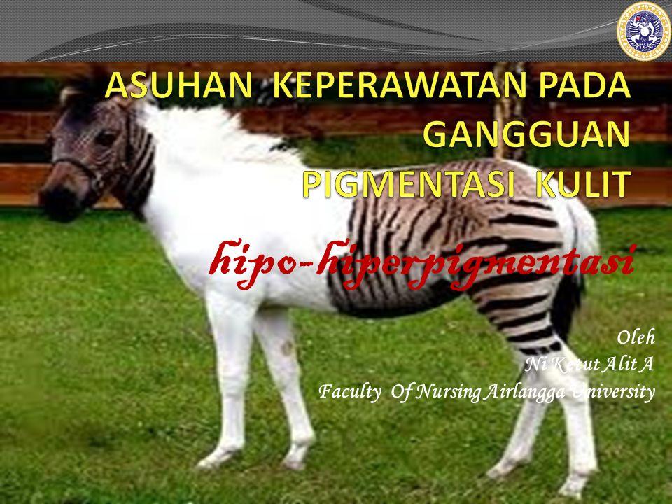 Oleh Ni Ketut Alit A Faculty Of Nursing Airlangga University hipo-hiperpigmentasi