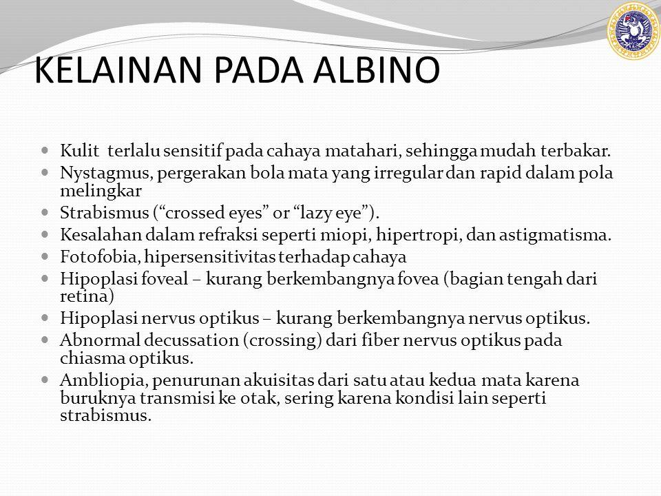 KELAINAN PADA ALBINO Kulit terlalu sensitif pada cahaya matahari, sehingga mudah terbakar. Nystagmus, pergerakan bola mata yang irregular dan rapid da