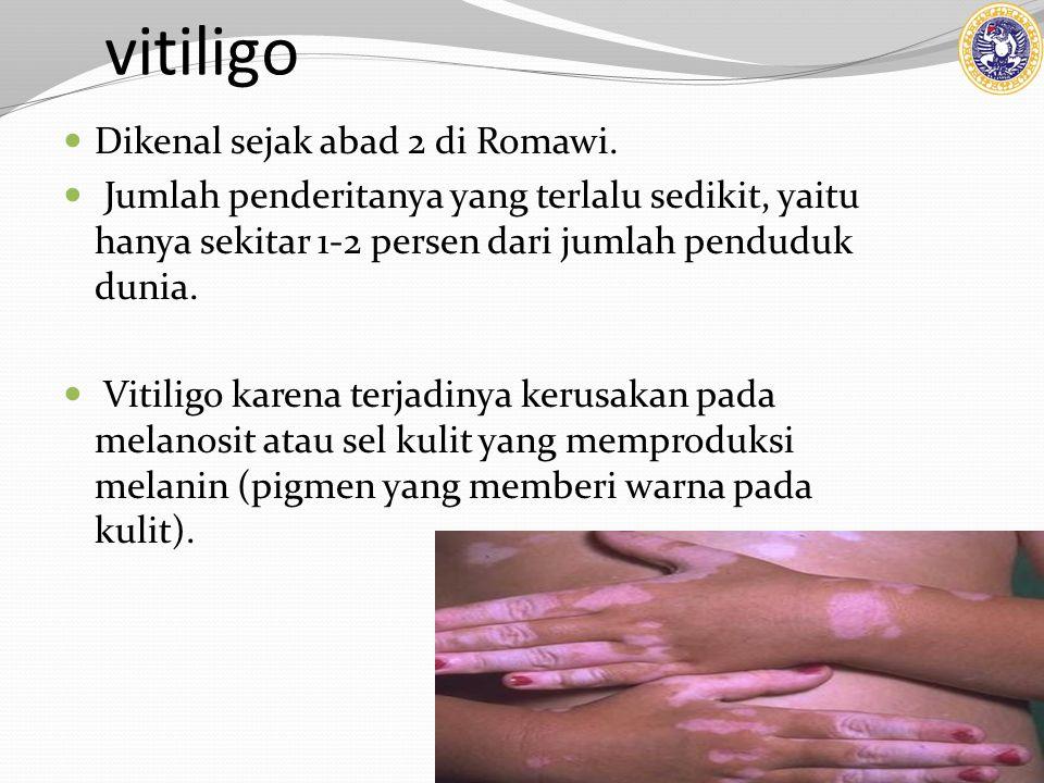 vitiligo Dikenal sejak abad 2 di Romawi. Jumlah penderitanya yang terlalu sedikit, yaitu hanya sekitar 1-2 persen dari jumlah penduduk dunia. Vitiligo