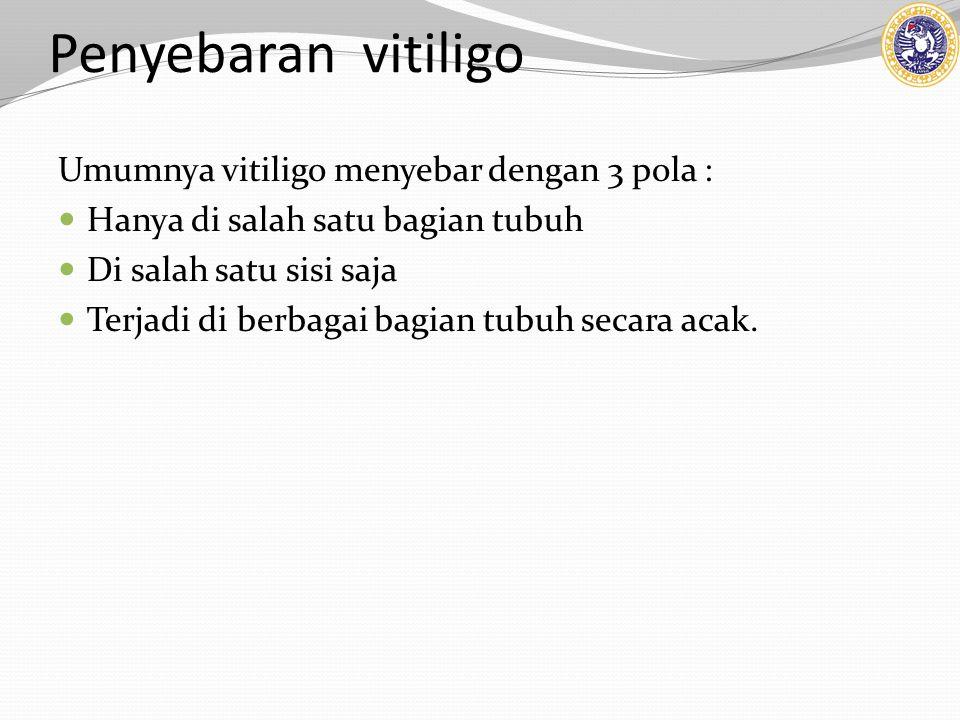 Penyebaran vitiligo Umumnya vitiligo menyebar dengan 3 pola : Hanya di salah satu bagian tubuh Di salah satu sisi saja Terjadi di berbagai bagian tubuh secara acak.
