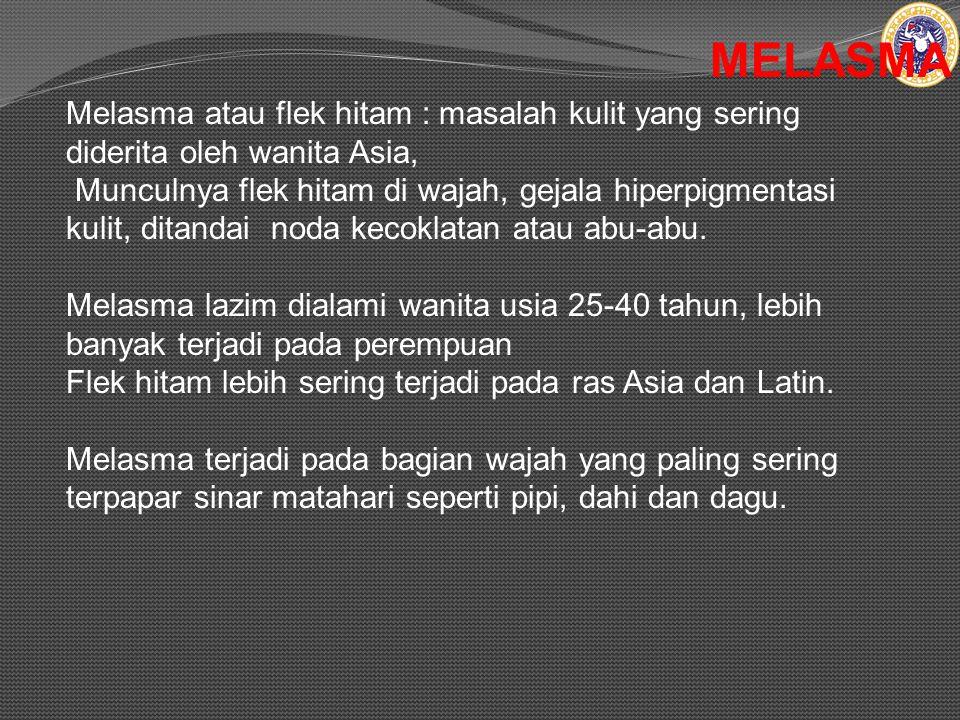 MELASMA Melasma atau flek hitam : masalah kulit yang sering diderita oleh wanita Asia, Munculnya flek hitam di wajah, gejala hiperpigmentasi kulit, ditandai noda kecoklatan atau abu-abu.