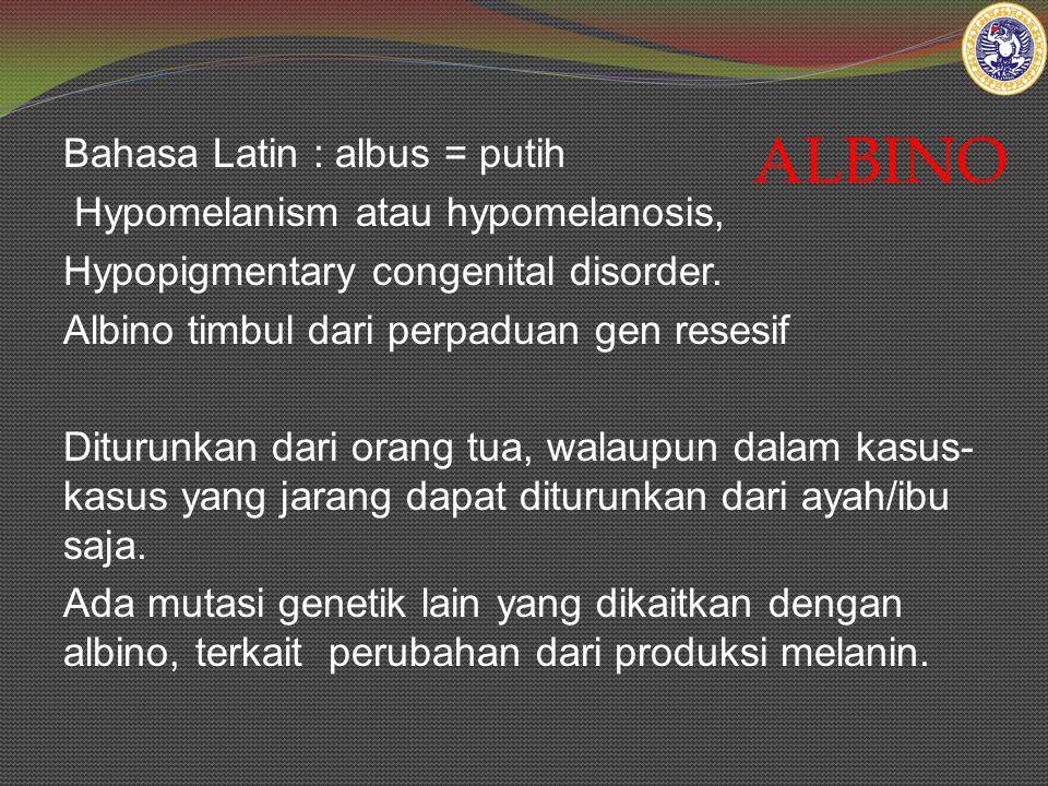 ALBINO Bahasa Latin : albus = putih Hypomelanism atau hypomelanosis, Hypopigmentary congenital disorder. Albino timbul dari perpaduan gen resesif Ditu