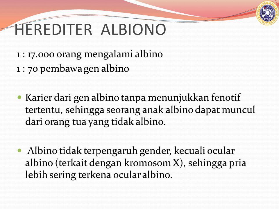 HEREDITER ALBIONO 1 : 17.000 orang mengalami albino 1 : 70 pembawa gen albino Karier dari gen albino tanpa menunjukkan fenotif tertentu, sehingga seorang anak albino dapat muncul dari orang tua yang tidak albino.