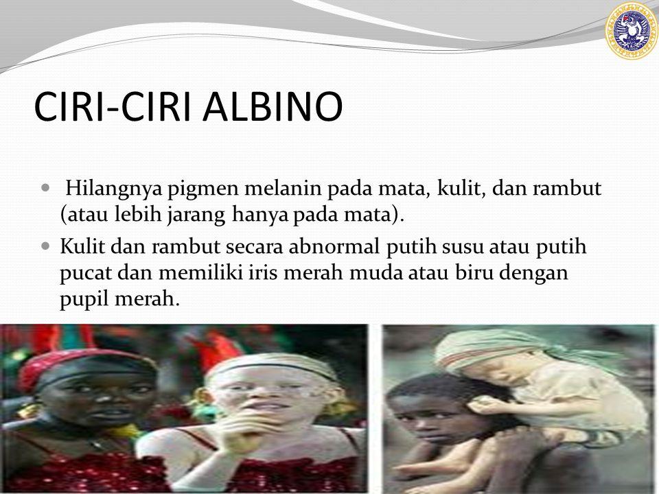 CIRI-CIRI ALBINO Hilangnya pigmen melanin pada mata, kulit, dan rambut (atau lebih jarang hanya pada mata). Kulit dan rambut secara abnormal putih sus
