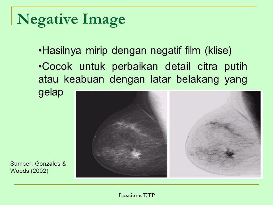 Lussiana ETP Negative Image Sumber: Gonzales & Woods (2002) Hasilnya mirip dengan negatif film (klise) Cocok untuk perbaikan detail citra putih atau keabuan dengan latar belakang yang gelap