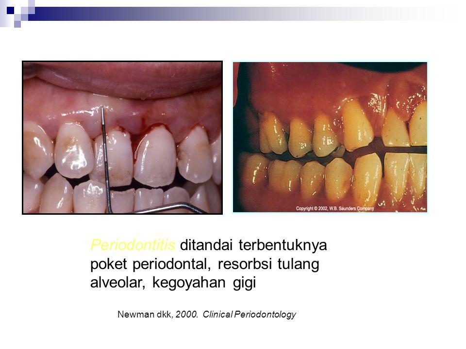 Periodontitis ditandai terbentuknya poket periodontal, resorbsi tulang alveolar, kegoyahan gigi Newman dkk, 2000. Clinical Periodontology