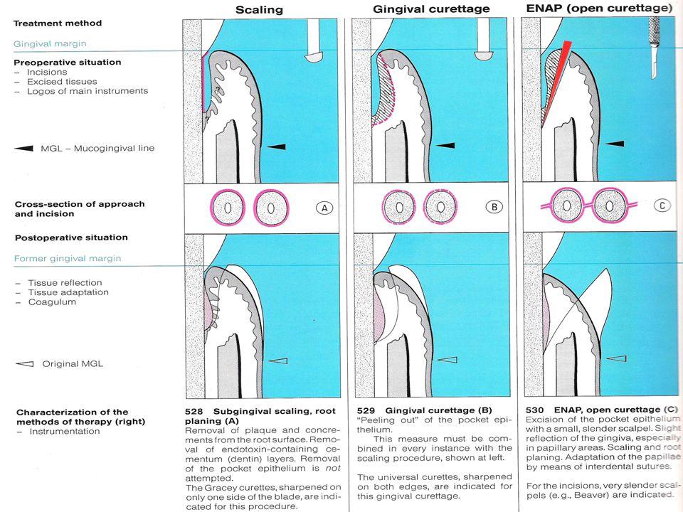 Teknik kuretase Kelanjutan skeling dan root planing Menghilangkan jaringan granulasi Membuat luka baru Closed method / blind method