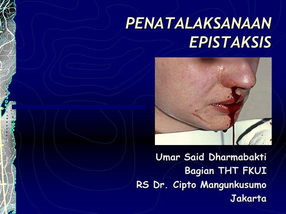 PENATALAKSANAAN EPISTAKSIS Umar Said Dharmabakti Bagian THT FKUI RS Dr. Cipto Mangunkusumo Jakarta