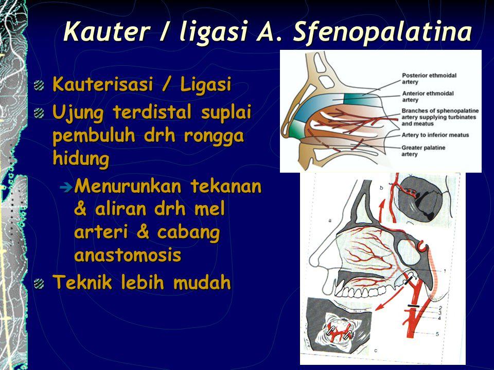 Kauter / ligasi A. Sfenopalatina Kauterisasi / Ligasi Ujung terdistal suplai pembuluh drh rongga hidung  Menurunkan tekanan & aliran drh mel arteri &