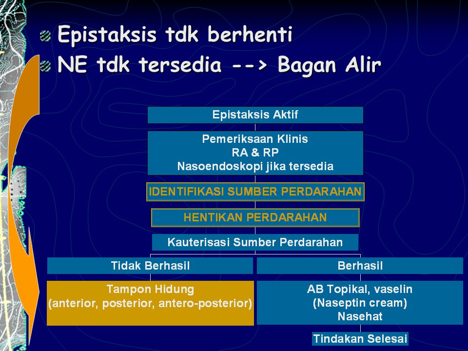 Epistaksis tdk berhenti NE tdk tersedia --> Bagan Alir