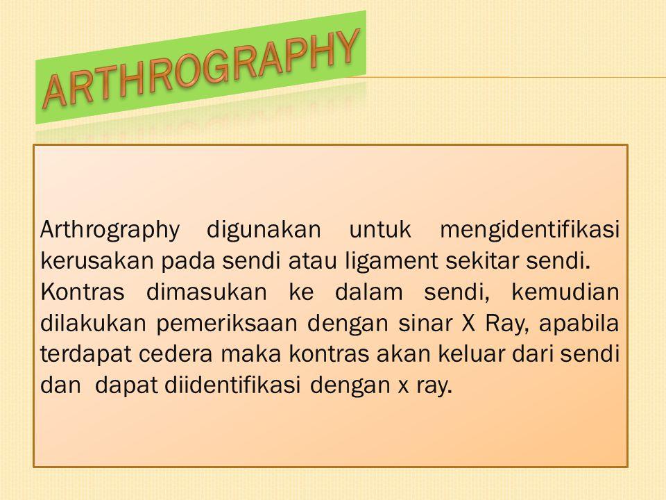 Arthrography digunakan untuk mengidentifikasi kerusakan pada sendi atau ligament sekitar sendi. Kontras dimasukan ke dalam sendi, kemudian dilakukan p