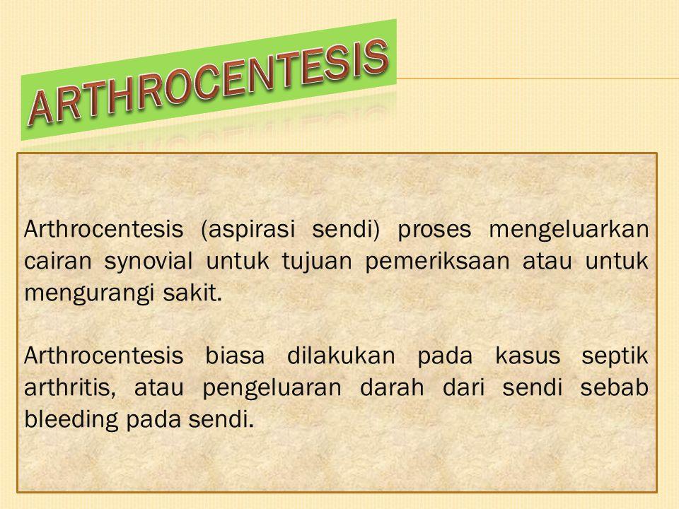 Arthrocentesis (aspirasi sendi) proses mengeluarkan cairan synovial untuk tujuan pemeriksaan atau untuk mengurangi sakit. Arthrocentesis biasa dilakuk